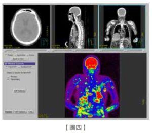 帶妳了解乳癌術前評估與術後追蹤(中)